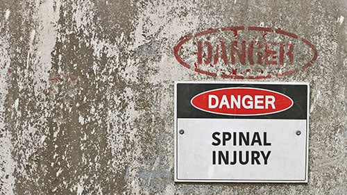 What Legal Theories Can Be Used to Pursue a Spinal Cord Injury Lawsuit?