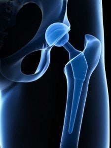 Wright Hip Replacement Complication Lawsuits :: Chicago