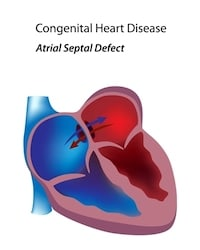 Zofran Atrial Septal Defects